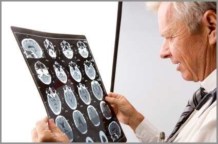 Brain Injury Attorneys