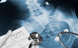 Spinal Cord Injuries Slip & Fall