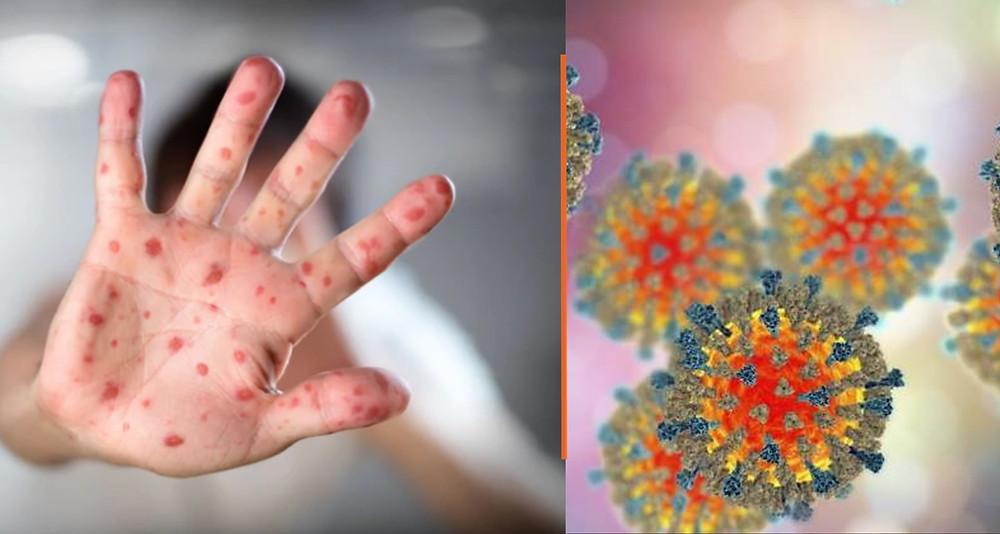 #Alerta: El sarampión se propaga en CDMX; jóvenes y adultos deben vacunarse y si hay abasto