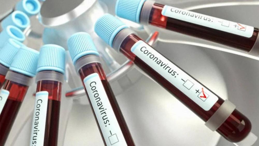 Detectan coágulos de sangre 'sin precedentes' en pacientes de Covid-19 en Estados Unidos