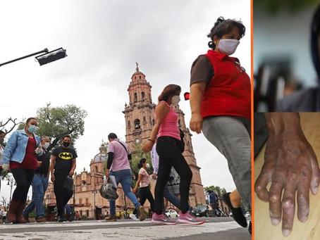 Michoacán se mantiene como segundo estado a nivel nacional con más casos de la Lepra