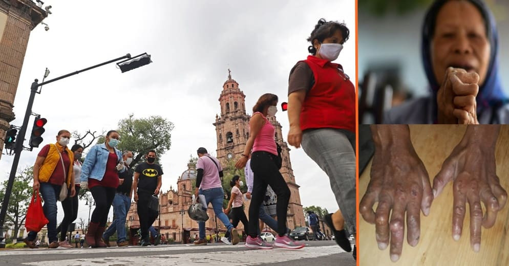 Michoacán, el segundo estado a nivel nacional con más casos de la Lepra