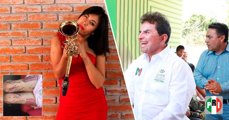 Exdiputado que bañó en ácido a saxofonista se ampara con 3 mil pesos y se libra de la prisión