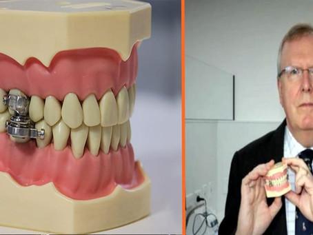 """Presentan el """"primer dispositivo del mundo para adelgazar"""" cerrando los dientes con un 'candado'"""