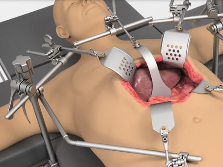 Ретракторна система для печінки/онкологічна система Thompson