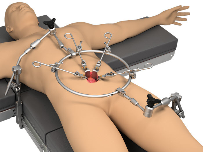 Thompson Anterior Lumbar Ring System