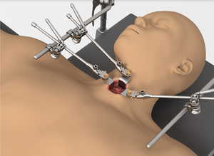 Small Incision System Thompson