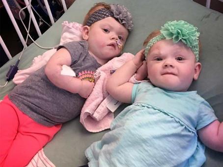 Сіамські близнюки щасливі та здорові після операції з розділення