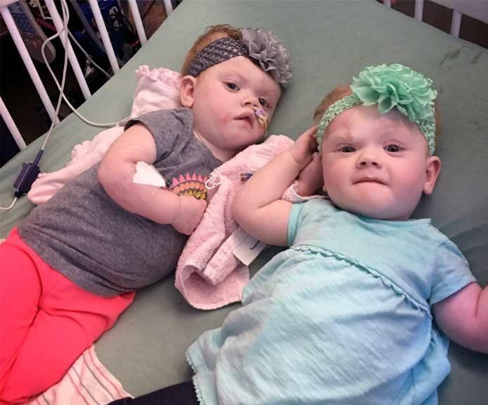 Еббі та Ерін після операції