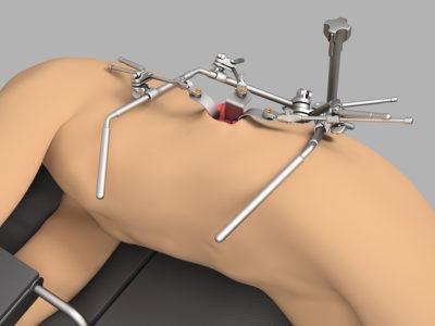 Kidney System Thompson