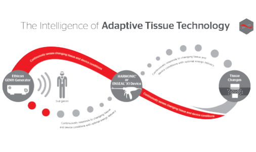 Технология адаптации к тканям (Adaptive Tissue Technology)