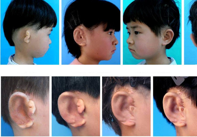 Діти вперше у світі отримують нові вуха, вирощені з власних клітин