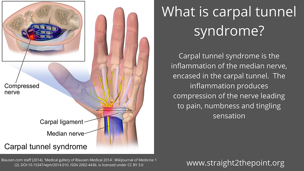what-is-carpal-tunnel-syndrome-?