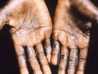 Waspada Virus Cacar Monyet (Monkeypox)