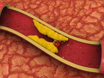 FITOSTEROL Lemak Penurun Kolesterol