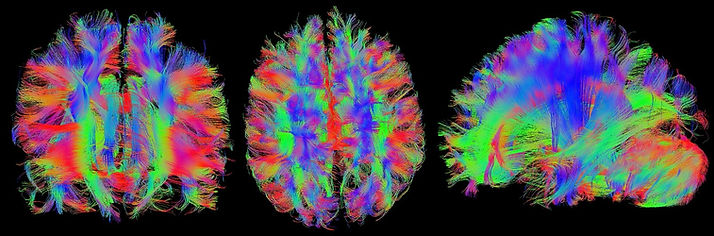 Diffusion tensor imagig of a human brain