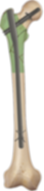 Neon-long.png