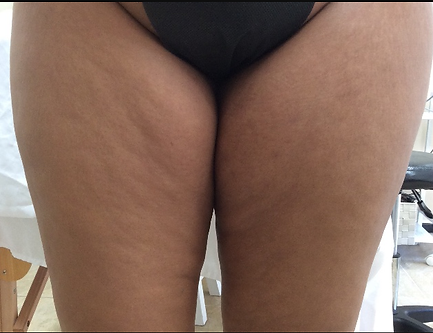 thigh_before.png