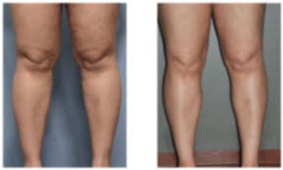 thigh2.jfif