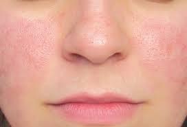 Cuidados extras com doenças de pele no inverno em meio ao coronavírus