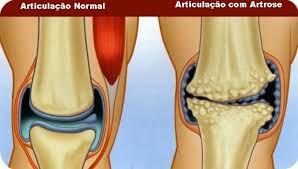 O impacto na qualidade de vida de quem tem artrose no joelho