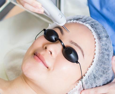 Headshot closeup of woman undergoing laser facials