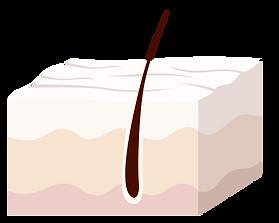 Cross diagram of skin with wrinkles