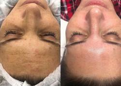 signature facial results