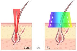 LaserVSIPL.jpg
