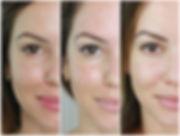 luz-pulsada-clareamento-facial-asa-norte