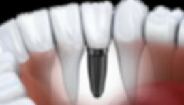 dentista_valladolid
