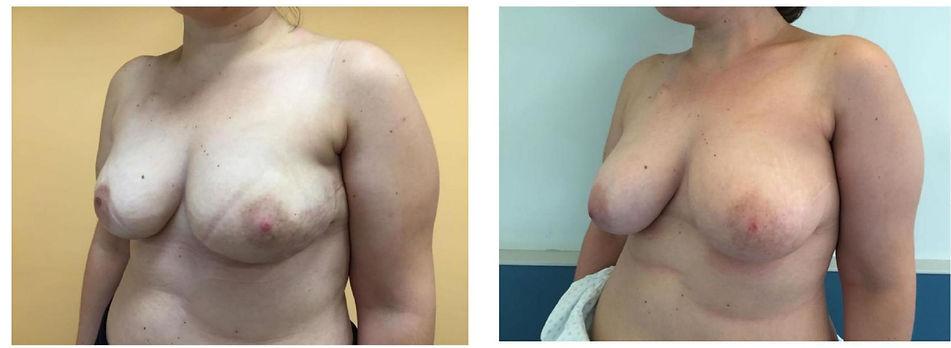 Risultato clinico tumore al seno con membrana in pericardio Exaflex