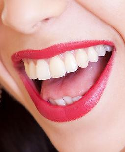 Materiali per dentisti