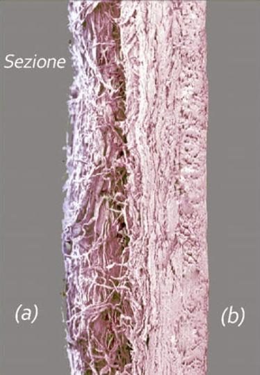 Membrana in pericardio