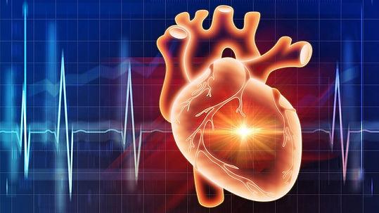 Cardiovascular disease_edited.jpg