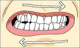 Effetti del dry needling su soggetti affetti da bruxismo notturno e disordini temporo mandibolari