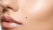 beauty mark.JPG