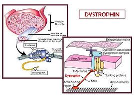 muscle-dystrophy-6-638.jpg