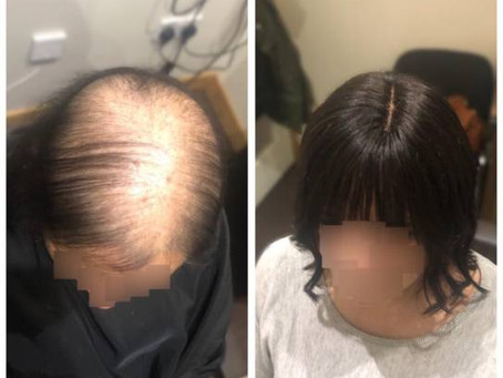 Lace Integration System Before & After