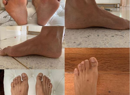 Samples of the foot photos required for foot assessment