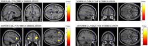 Areas del cerebro activas durante la valoración estética de objetos en lugares y contextos.