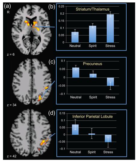 Ilistra las zonas del cerebro que se activan durante la experiencia espiritual.