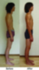 ART_Rolfing-before-after-2bf2591c.jpg