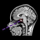 pituitary-circle.jpg