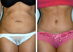 Before & After Pictures of Tummy Tuck at Ventura Plastic Surgery