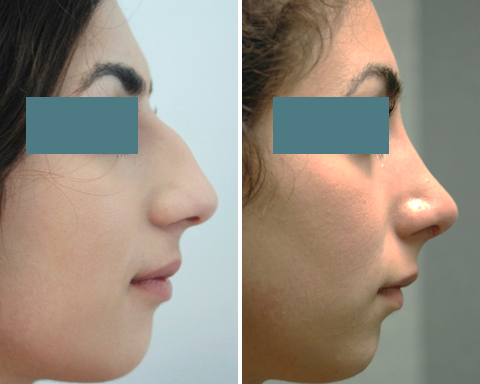 Before & After Pictures of Nose Reshaping Surgery at Ventura Plastic Surgery