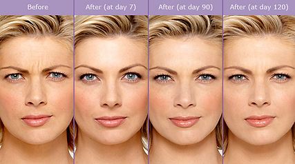 Before & After Photos of Botox Cosmetic