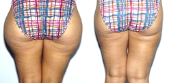 Before & After Pictures of Liposuction at Ventura Plastic Surgery