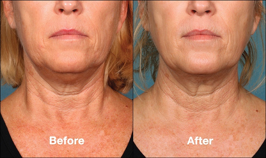 Before & After Photos of Kybella Cosmetic Injection