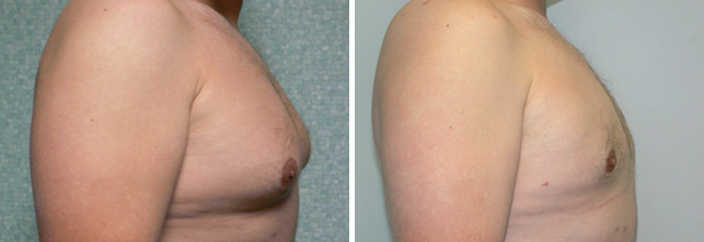 Before & After Pictures of Gynecomastia Surgery at Ventura Plastic Surgery